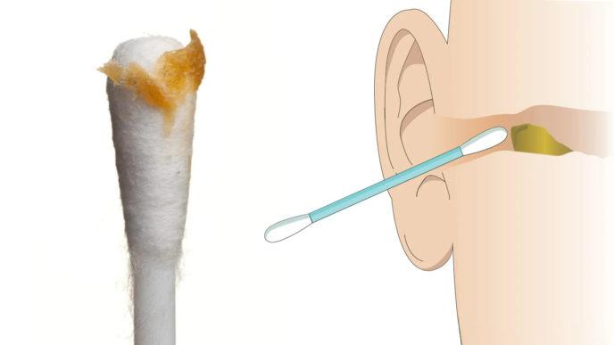 Počúvajte názory lekárov: pre toto je naozaj nebezpečné čistiť si uši vatovými tyčinkami!